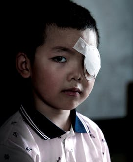 Young Boy With Eye Patch China