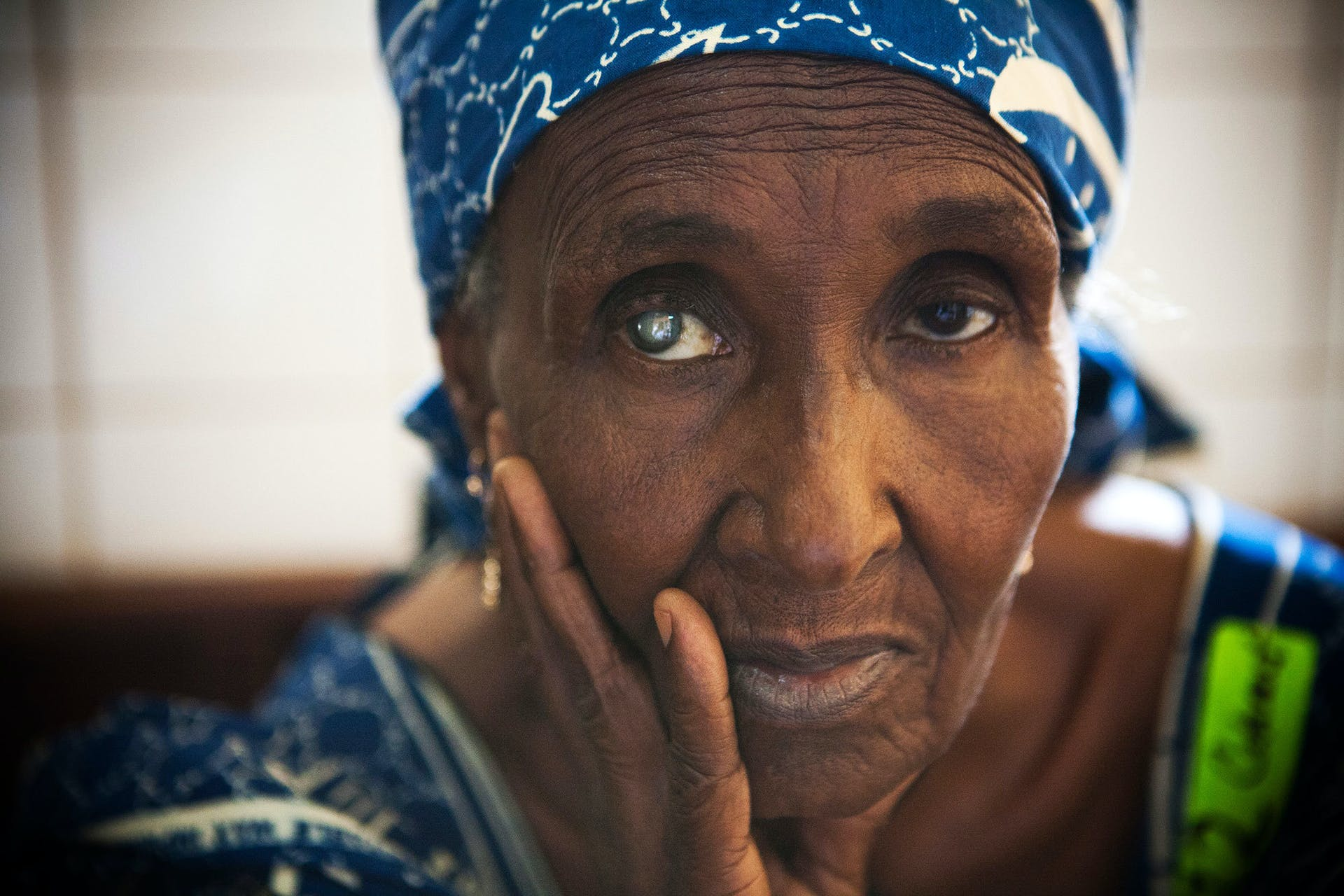 Aissatou from Cameroon waits for cataract surgery