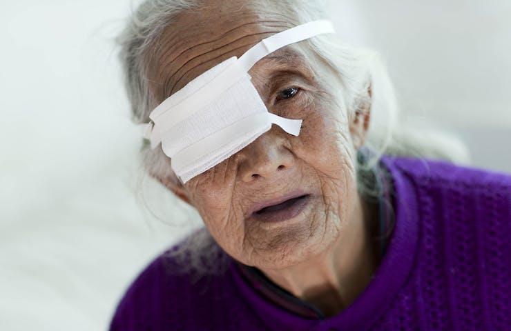 Elderly patient Yu Xue Zhen wears an eye covering after a cataract operation in Yunnan, China