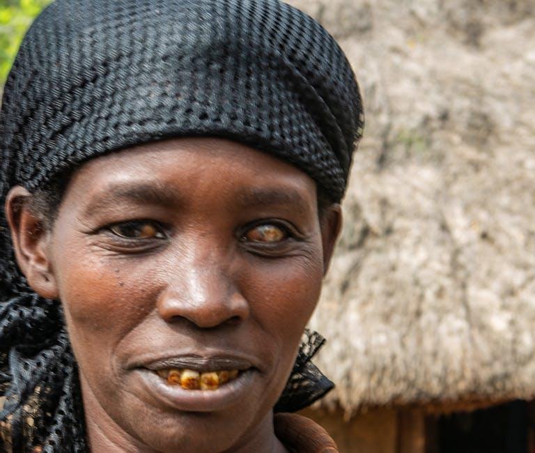 Trachoma patient Aylito, Ethiopia, in 2018