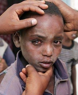 Ethiopia 2008 C Raul Vasquez Bonsa Lalenda 10Yrs M Trachoma Web