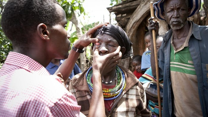Ethiopian woman receives eye exam.