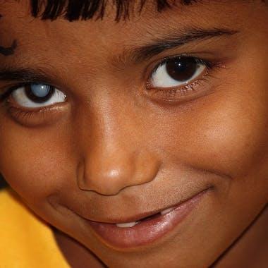 604700 India Jaipur 2009 Renu Kumari Right Traumatic Cataract