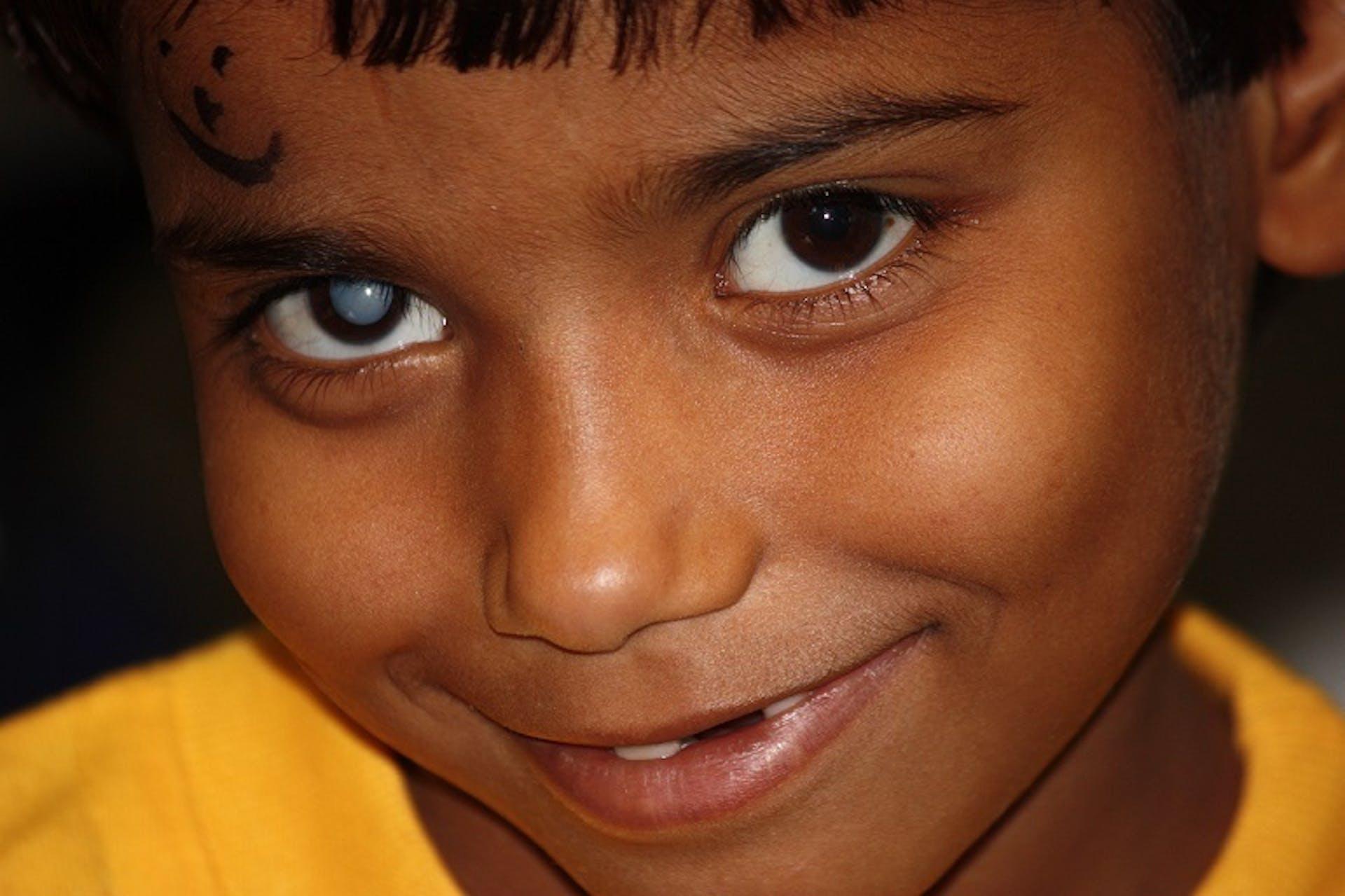Renu Kumari, an Indian child with right traumatic cataract, wearing a yellow top, looks into camera