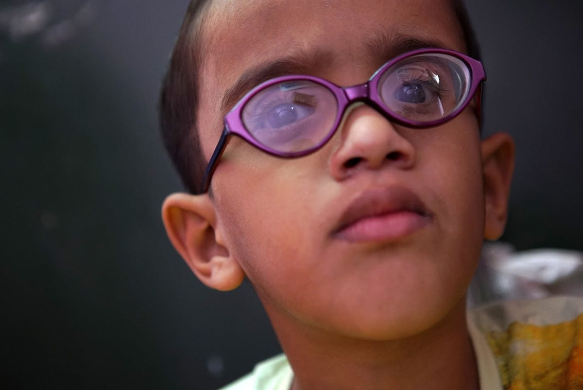 Ismail from India had sight loss caused by retinopathy of prematurity