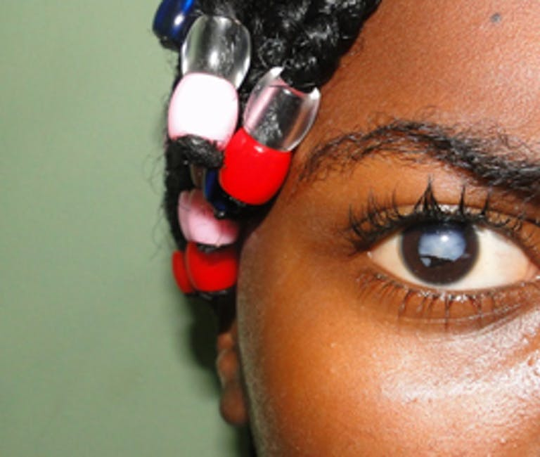 Zambian patient Gladys has a cataract caused by trauma to the eye