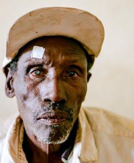 Ethiopia 2018 Gamo Gofa C Martin Kharumwa Karat District Hosp Kalsho Kusiya M Cataract