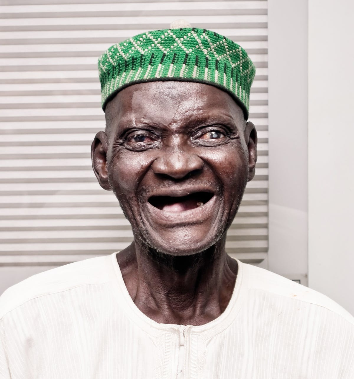 An elderly male with cataracts before surgery in Nigeria