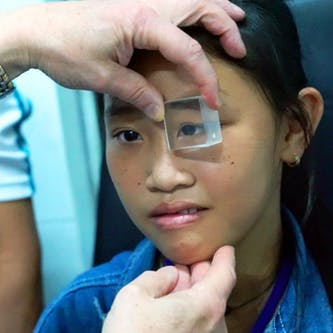 Trinh having her eyes checked before her operation to correct strabismus