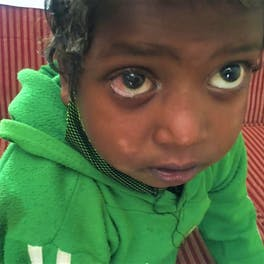 Sharban with the eye injury