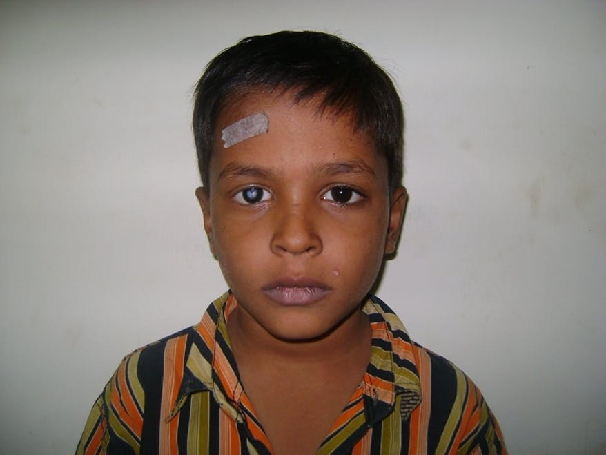 A child cataract patient before surgery to remove it
