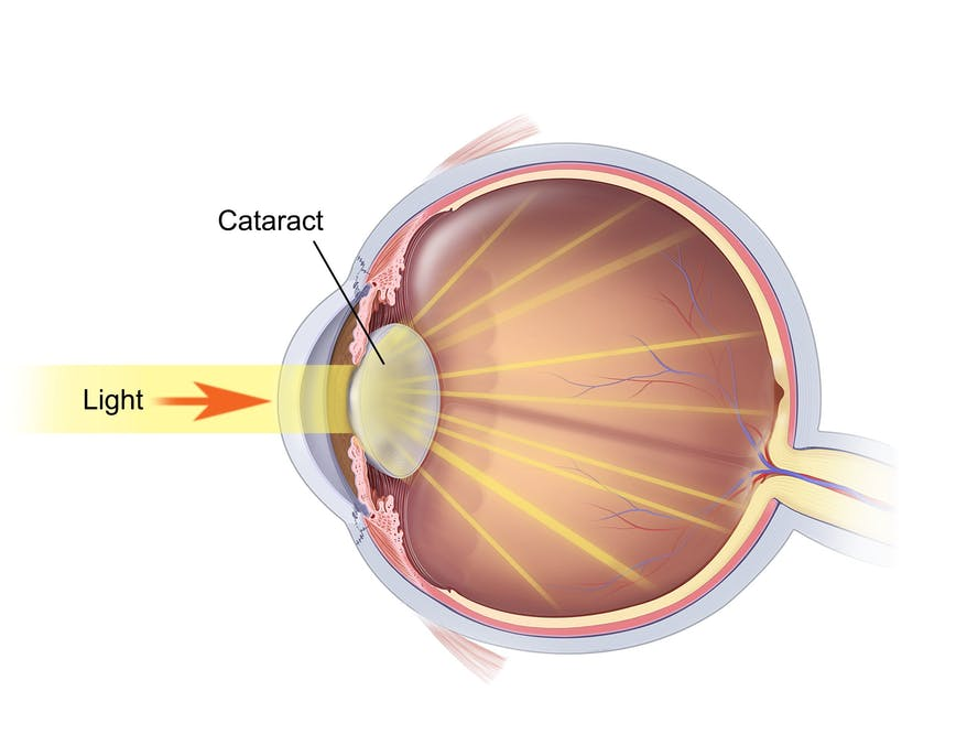 What a cataract looks like in a diagram
