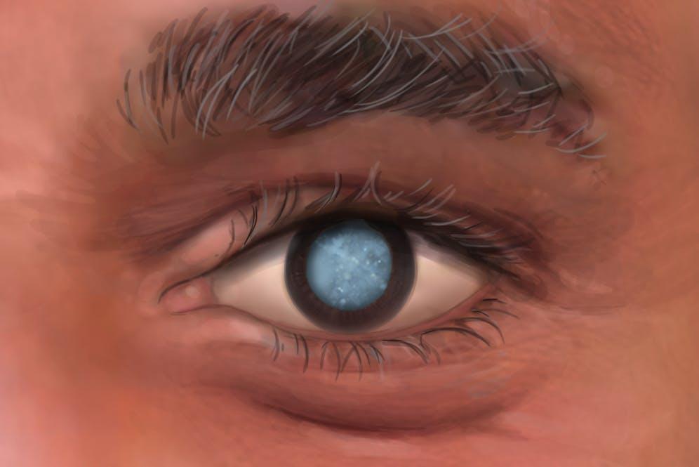 What an adult cataract looks like