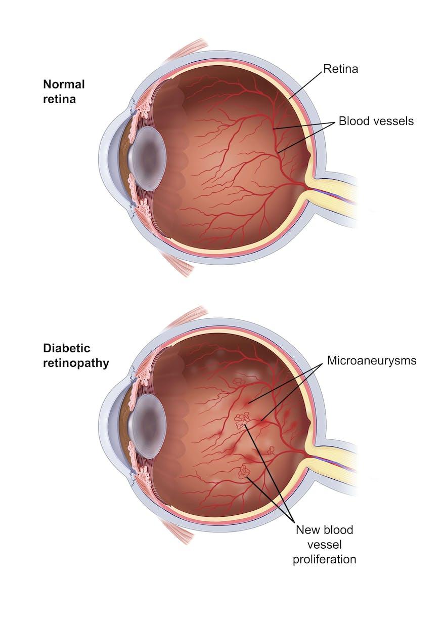 Diagram shows a normal eye vs. an eye affected by Diabetic Retnopathy