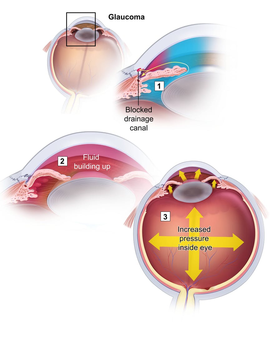 Glaucoma Diagram: How pressure is building up in the eye