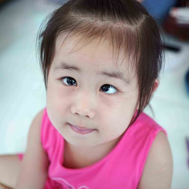 A three-year-old girl pictured with strabismus or crossed-eyes in Vietnam
