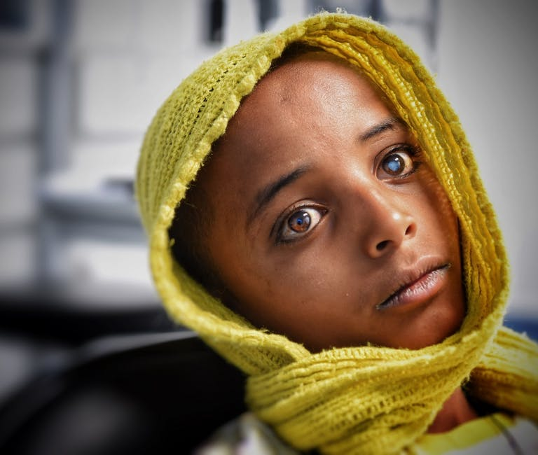 Young child with cataract in Ethiopia