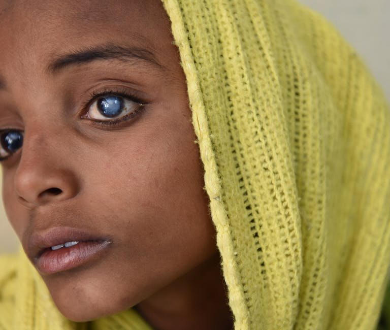 A young child with cataracts in both eyes