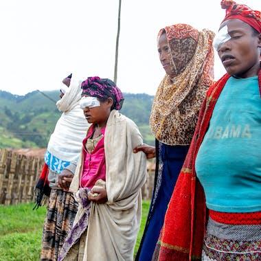 Orbis Uk Ethiopia C Martin Kharumwa Health Extension Worker Bekelech Guides Tt Patients For Follow Up Gamo Gofa 1