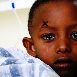Celia's photo of a child patient in Ethiopia