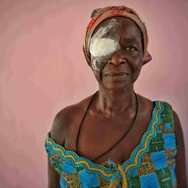 An elderly patient treated for cataracts on our Flying Eye Hospital project in Accra, Ghana, November 2019