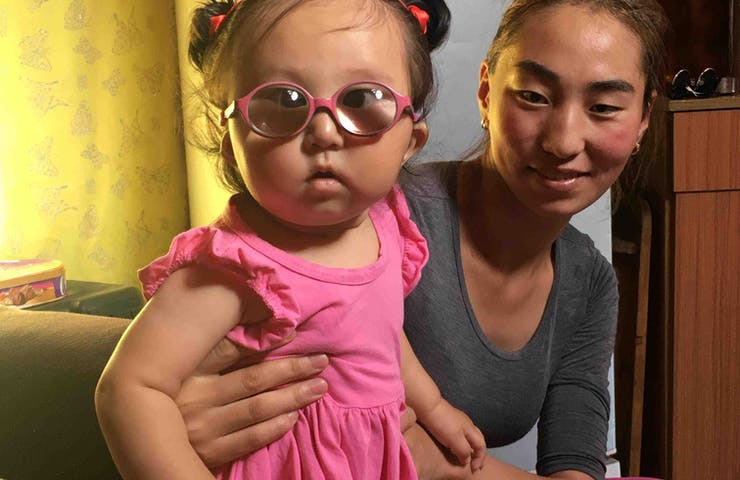 Marla's mother and grandmother were also born with congenital cataracts