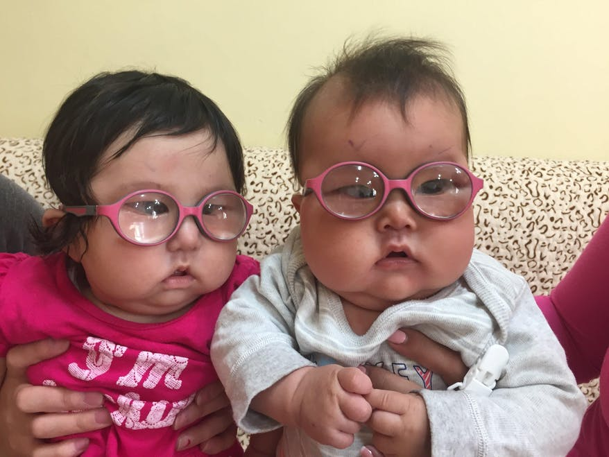 At 42 days old, Marla became the youngest person in Mongolia to receive cataract surgery