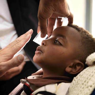 Yabsira had his strabismus examined with prisms during screening day in the pediatric clinic by Dr. Douglas Fredrick, volunteer faculty