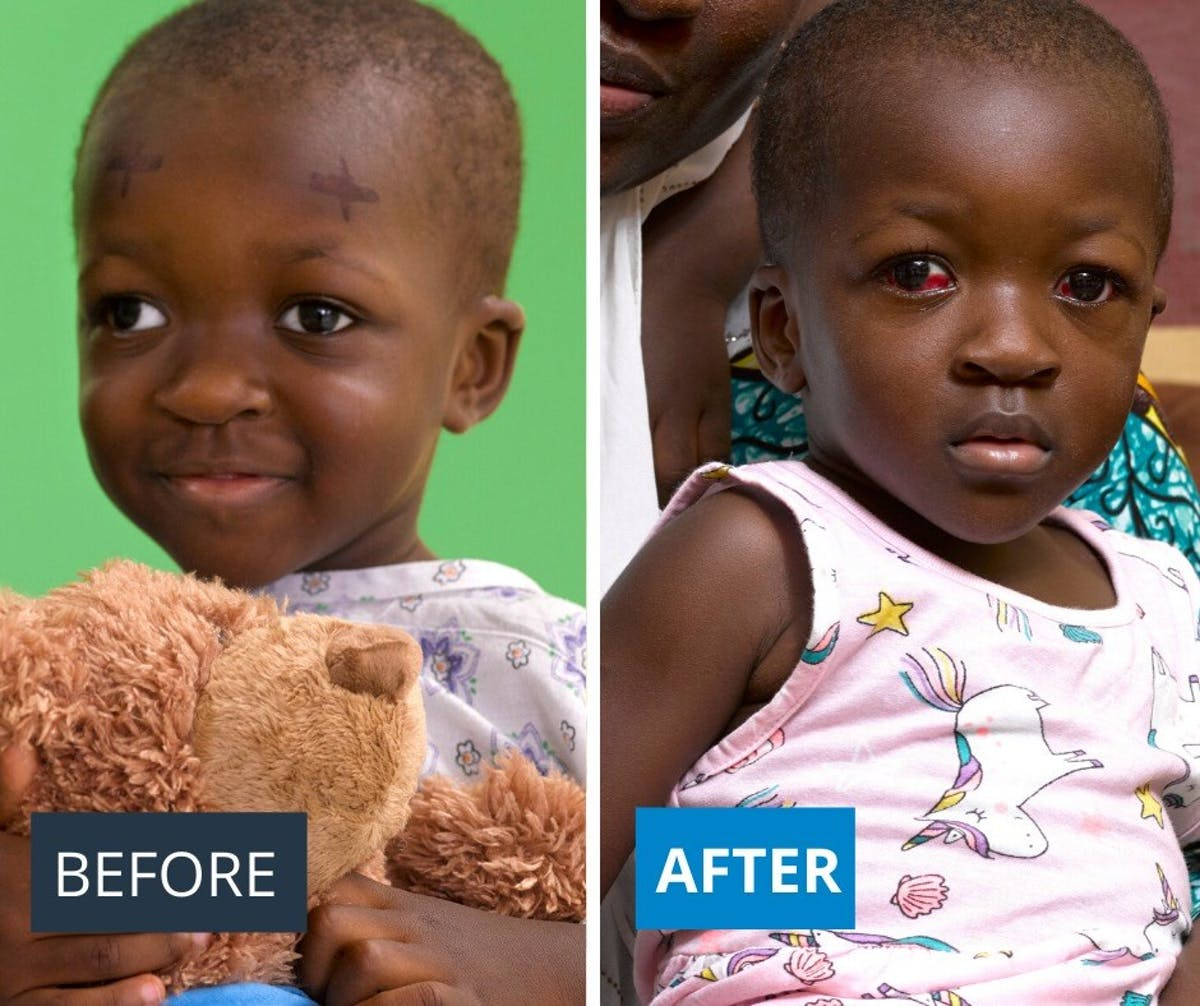 Hakeema's transformation: Before and after her operation to correct her squint